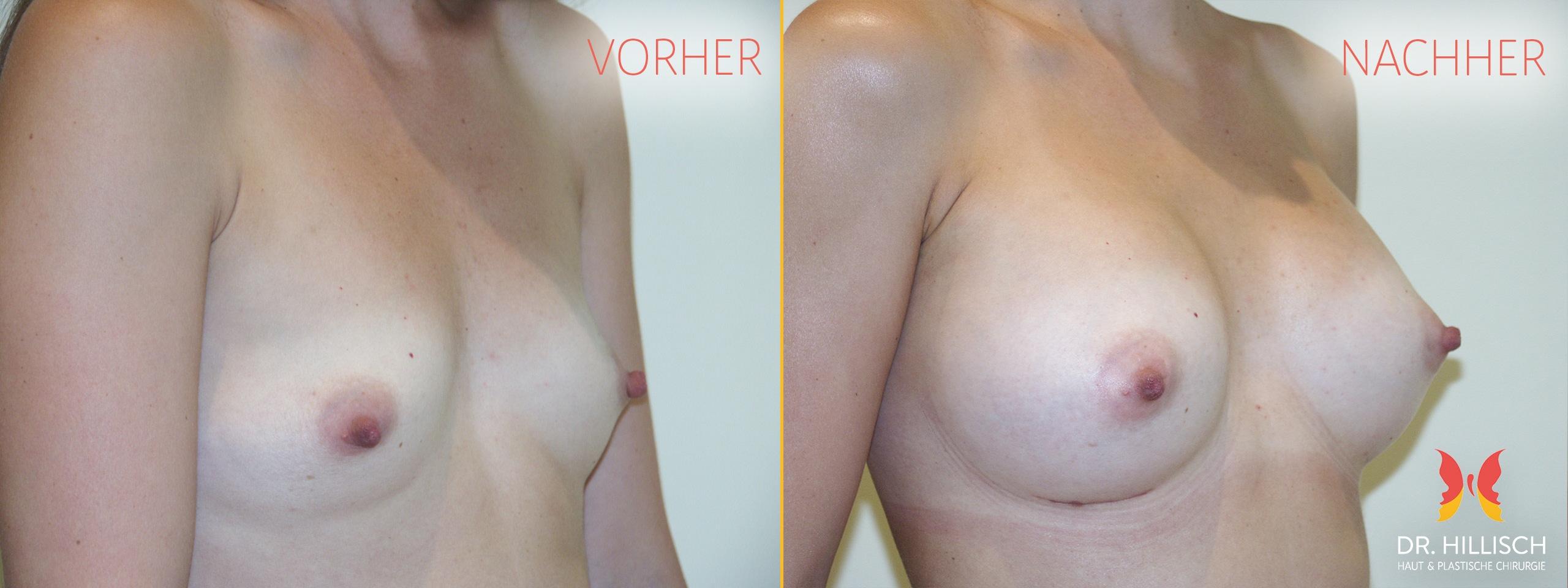 Brustvergrößerung Vorher Nachher Patient 001