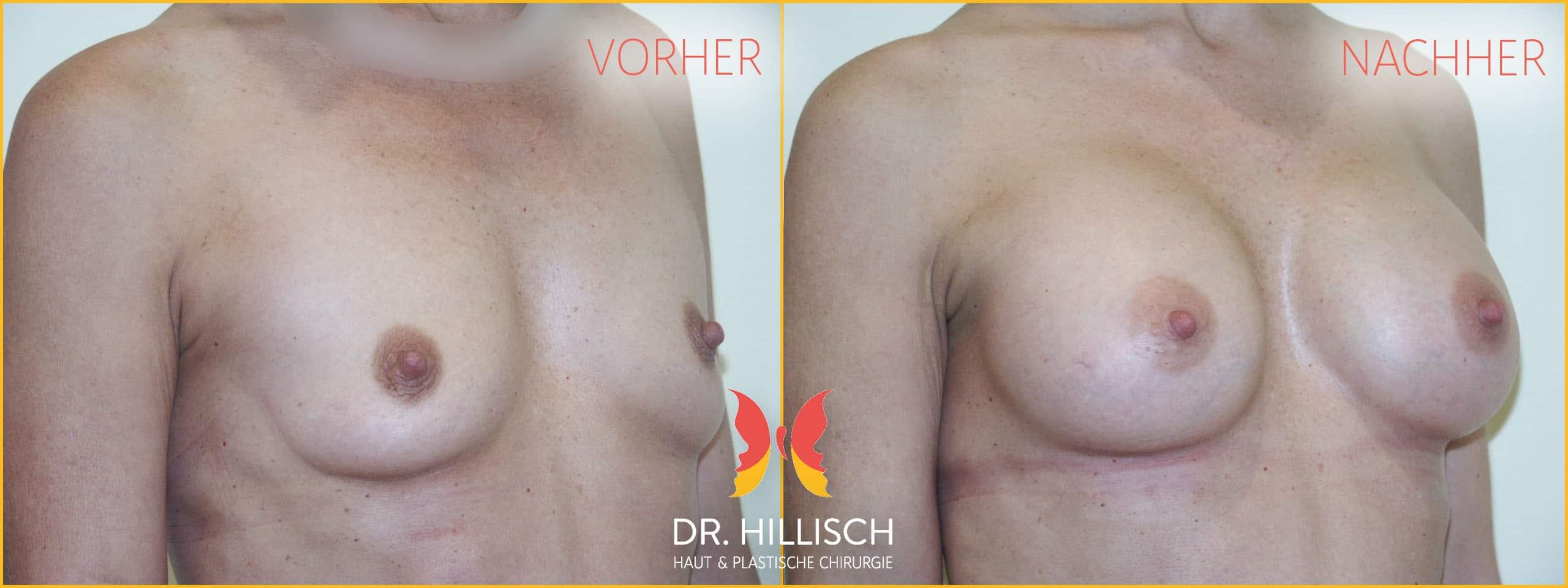 Brustvergrößerung Vorher Nachher Patient