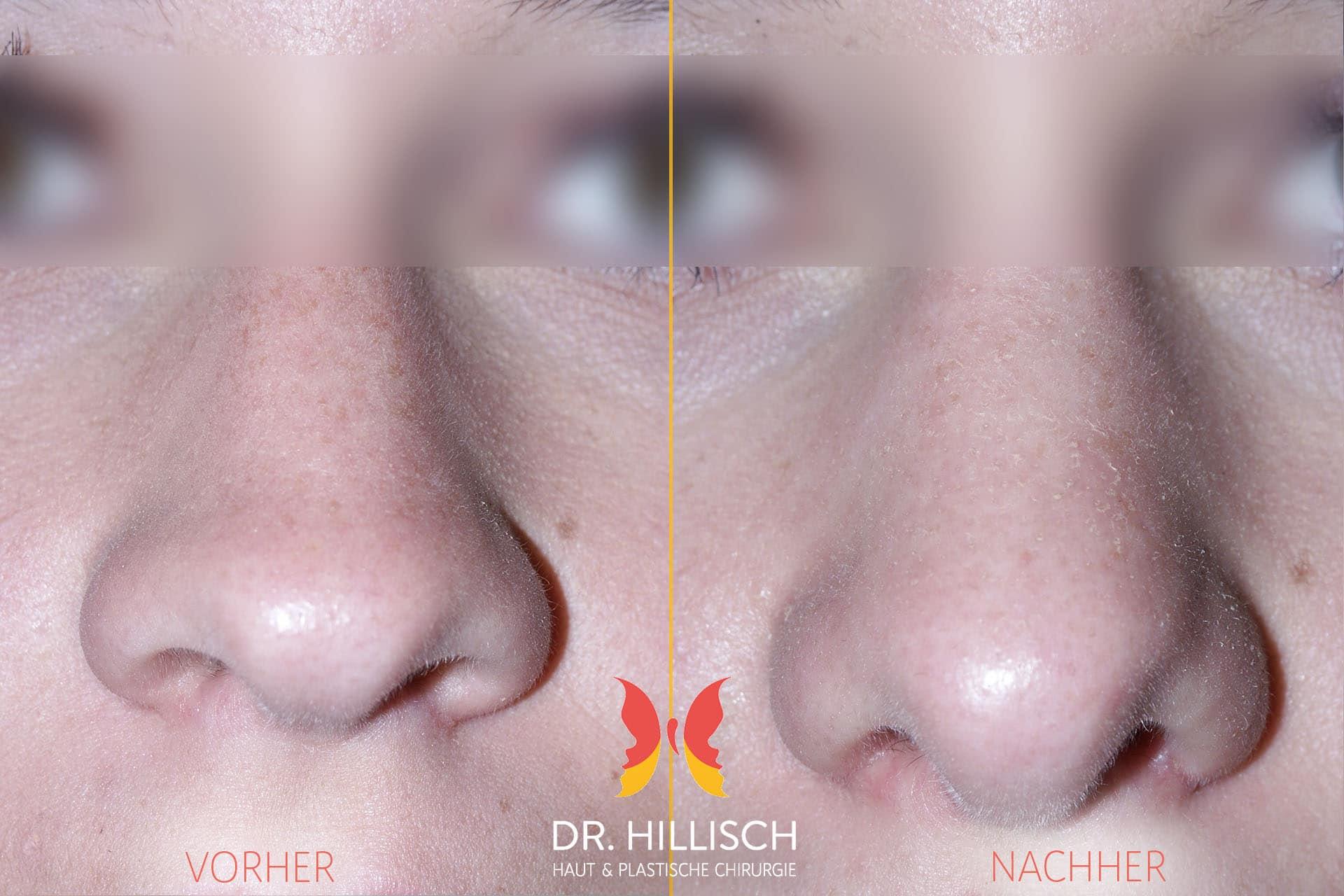 Nasenkorrektur Vorher Nachher Patient