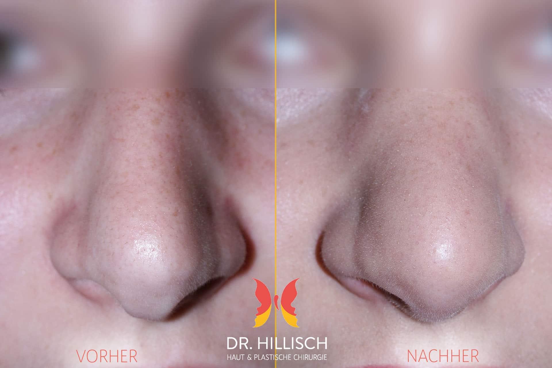 Nasenkorrektur Vorher Nachher Patient 008
