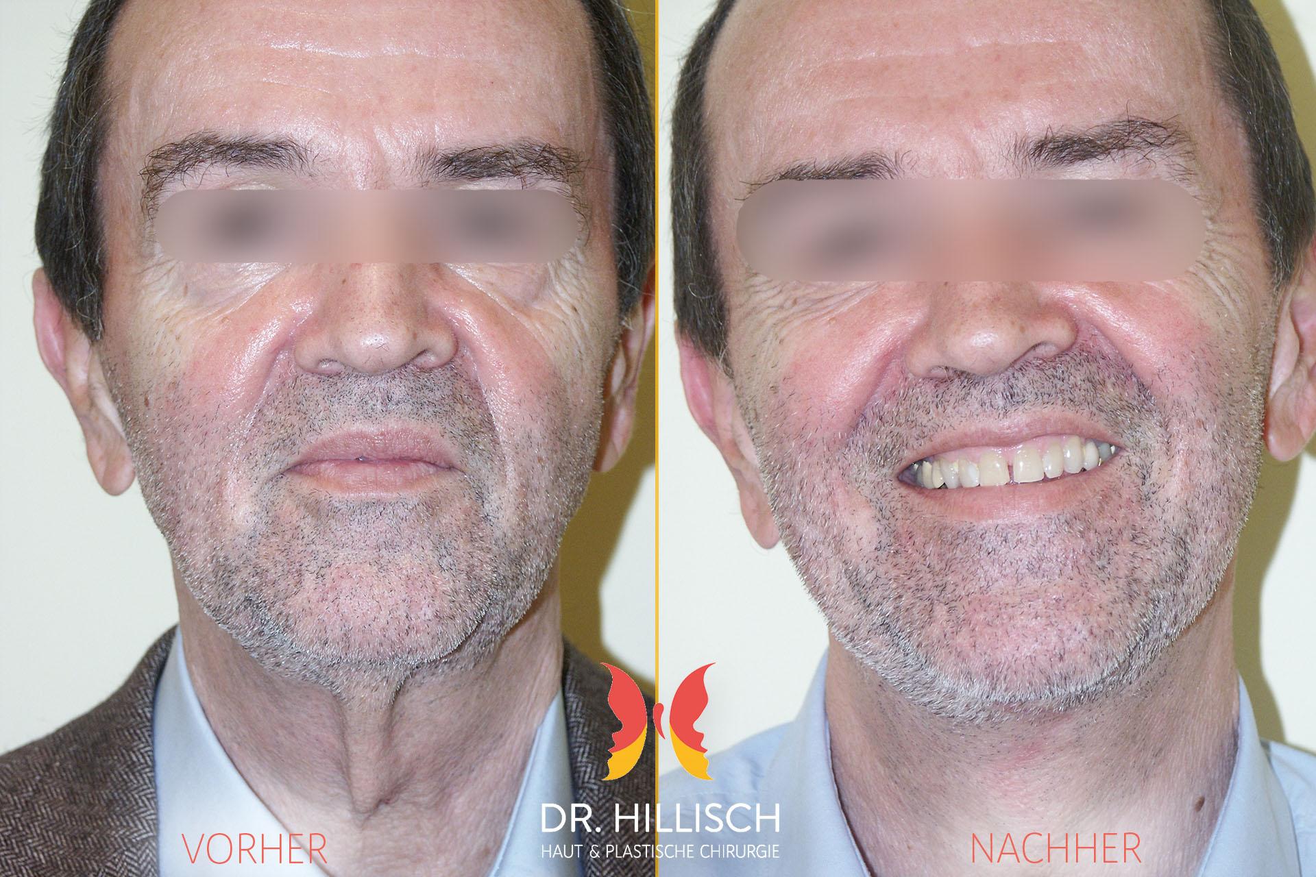 Gesicht Vorher Nachher Patient 011