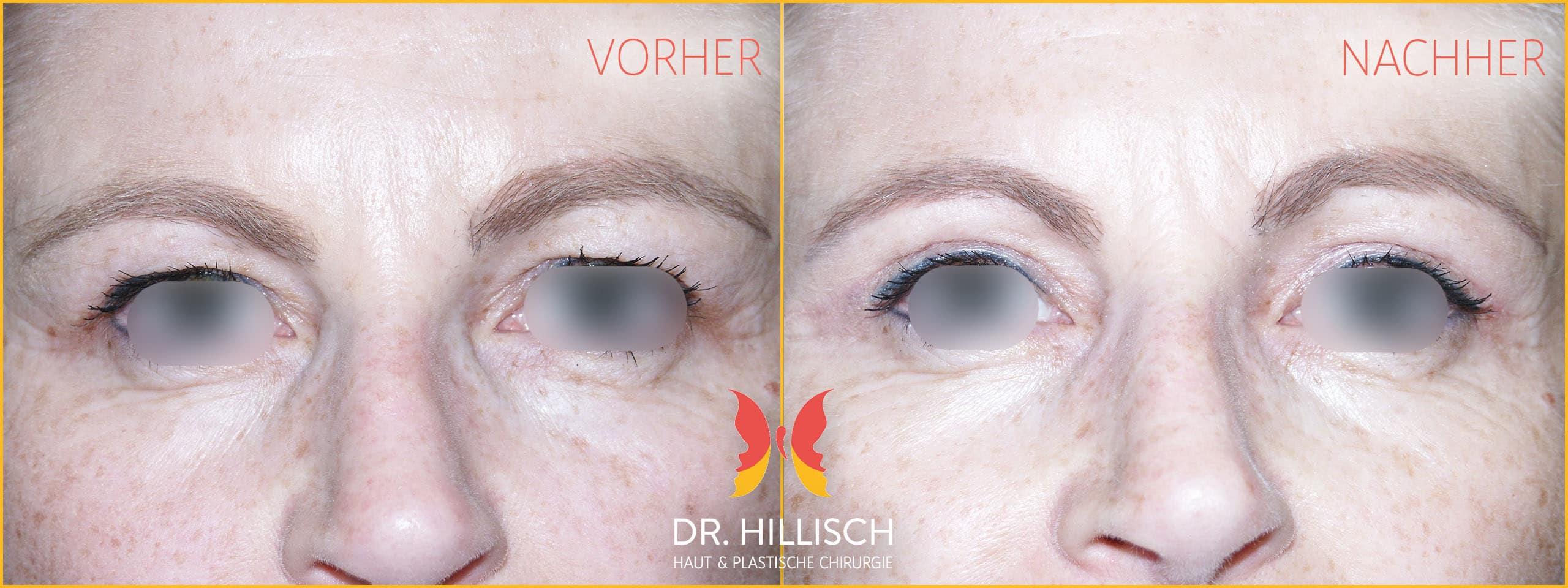 Augenlidstraffung Vorher Nachher Patient 012