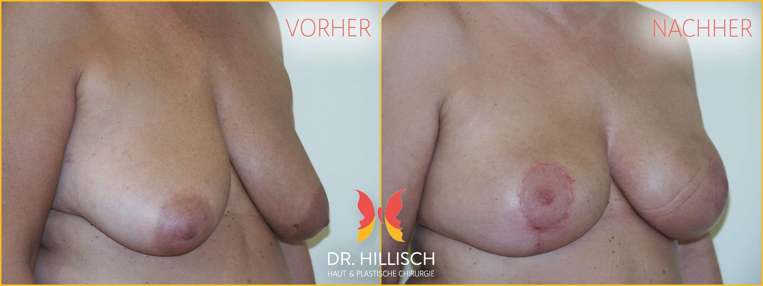 Brust Vorher Nachher Patient 014