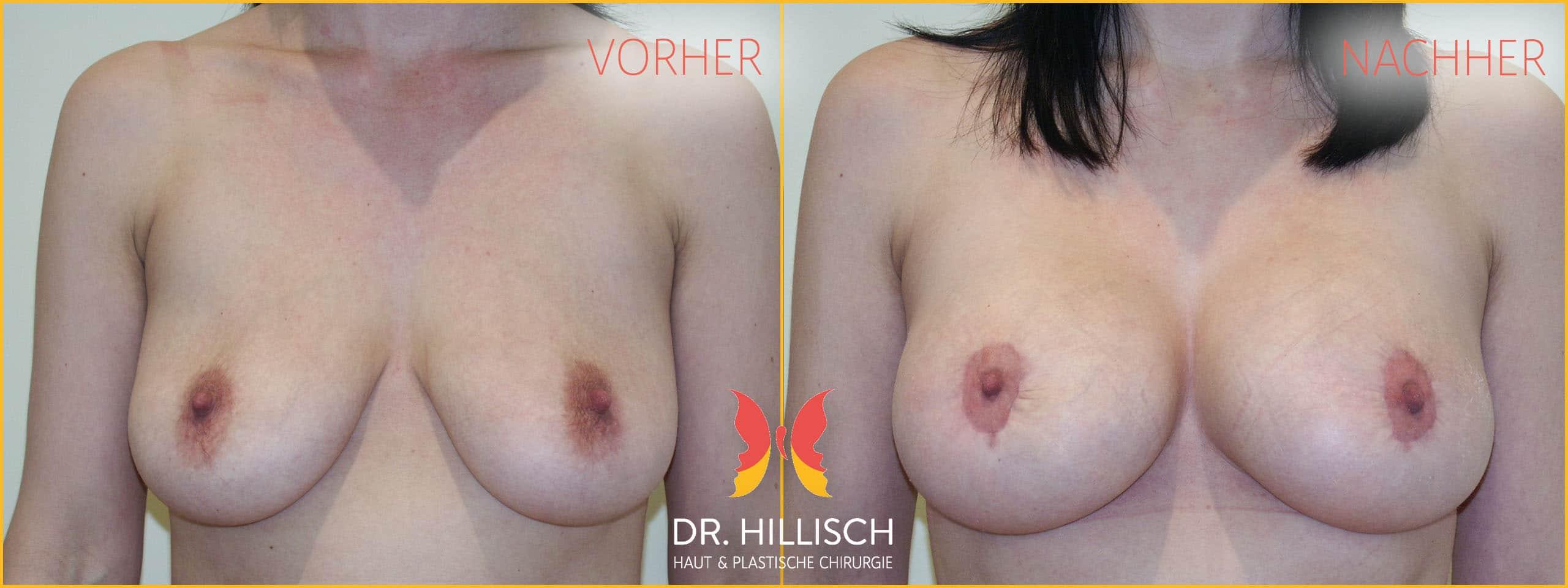 Brust Vorher Nachher Patient 015