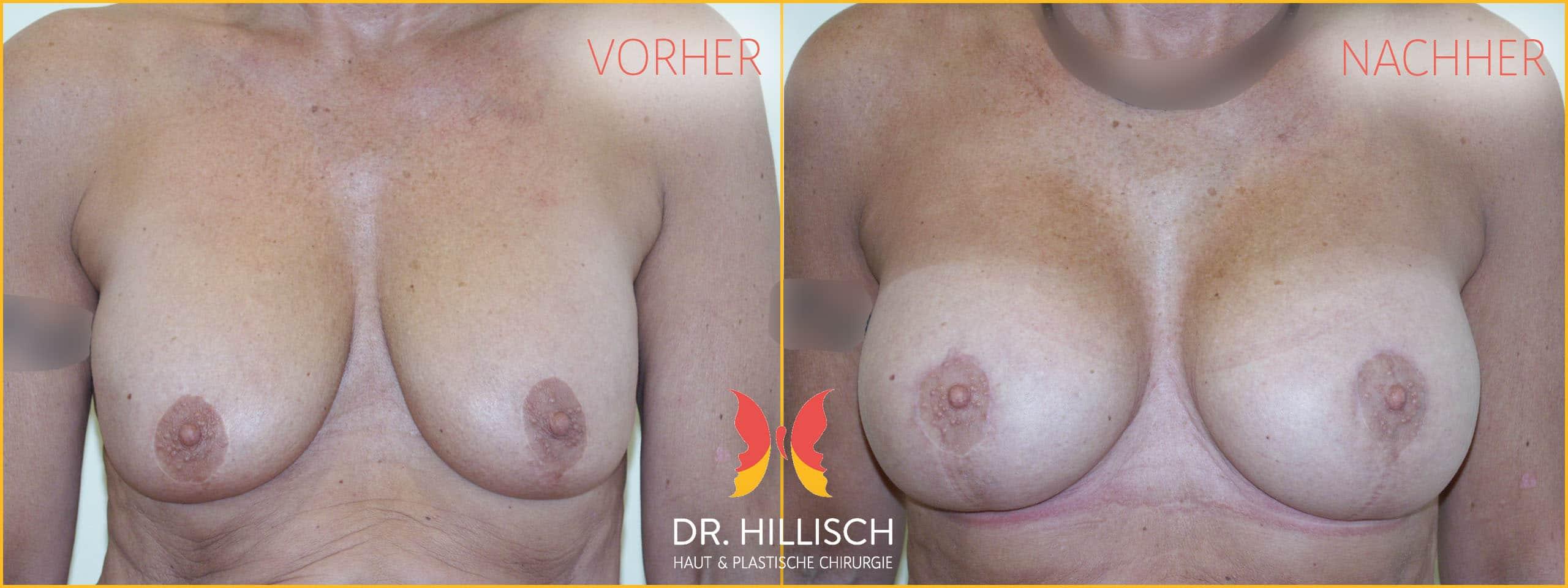 Brust Vorher Nachher Patient 016