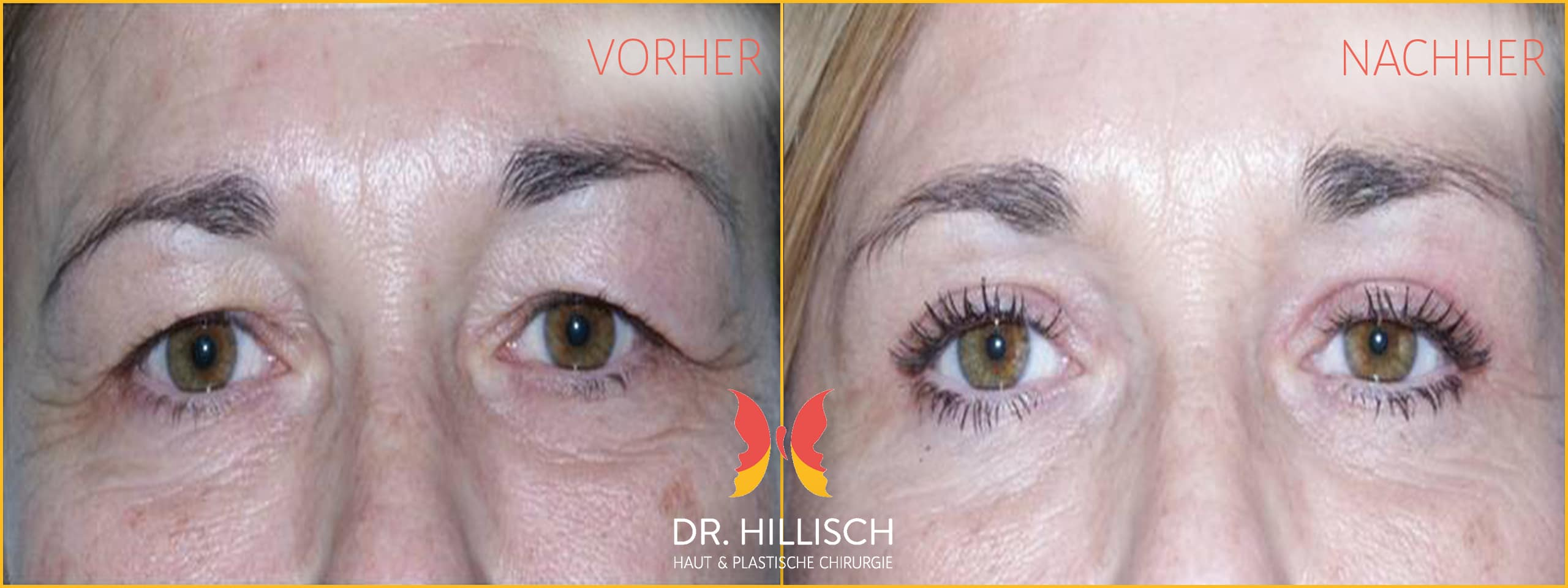 Augenlidstraffung Vorher Nachher Patient 021