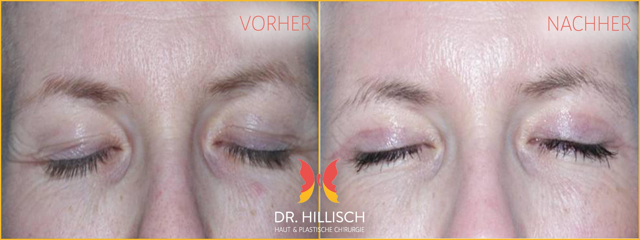 Augenlidstraffung Vorher Nachher Patient 022
