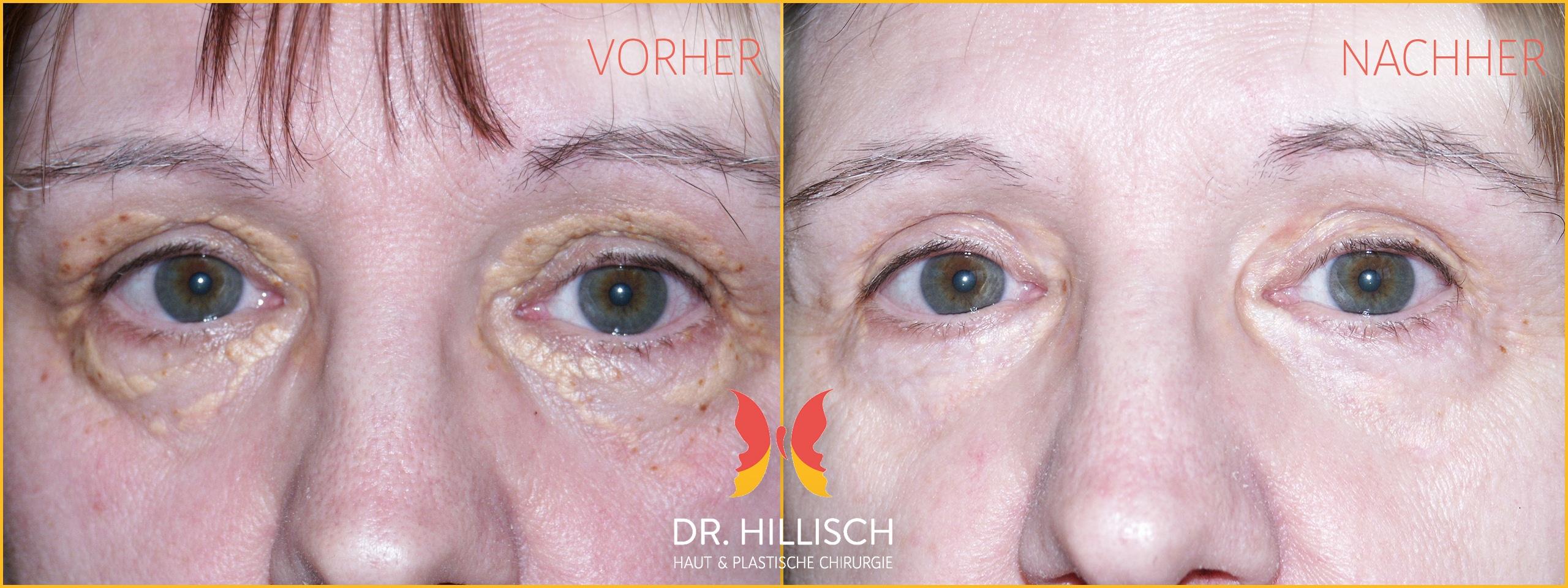 Hautverjüngung Vorher Nachher Patient 023