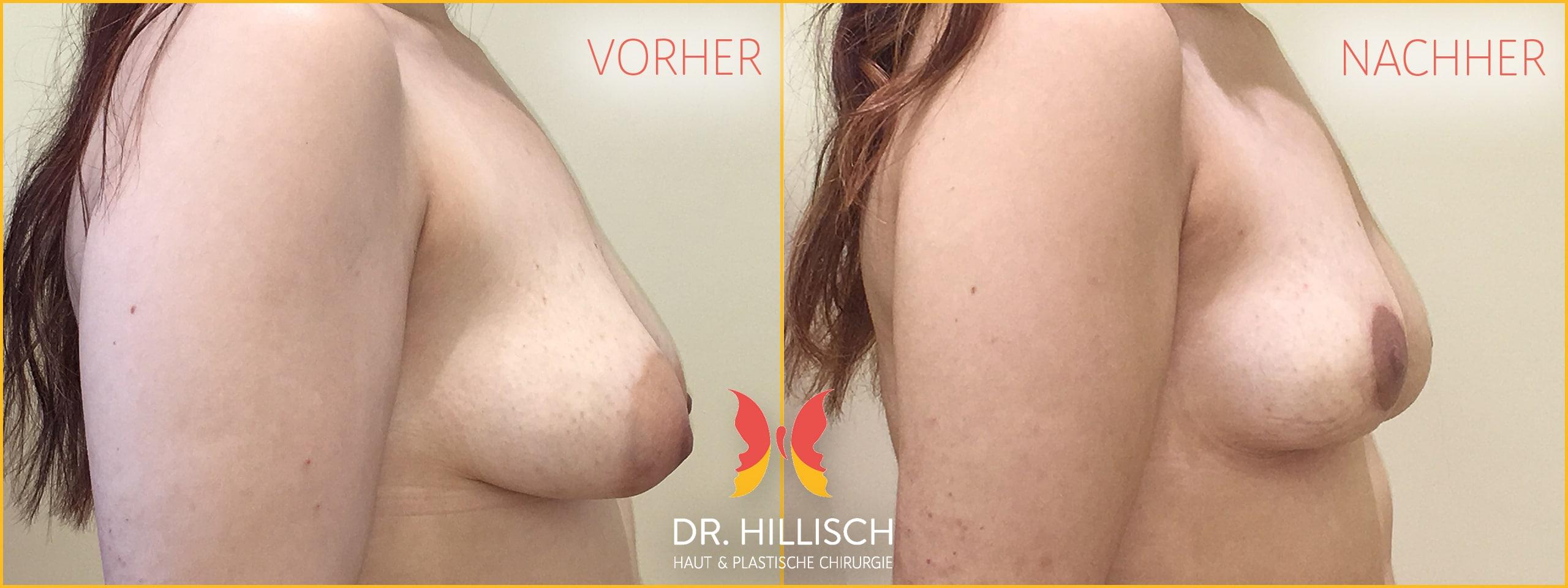 Bruststraffung Vorher Nachher Patient 025
