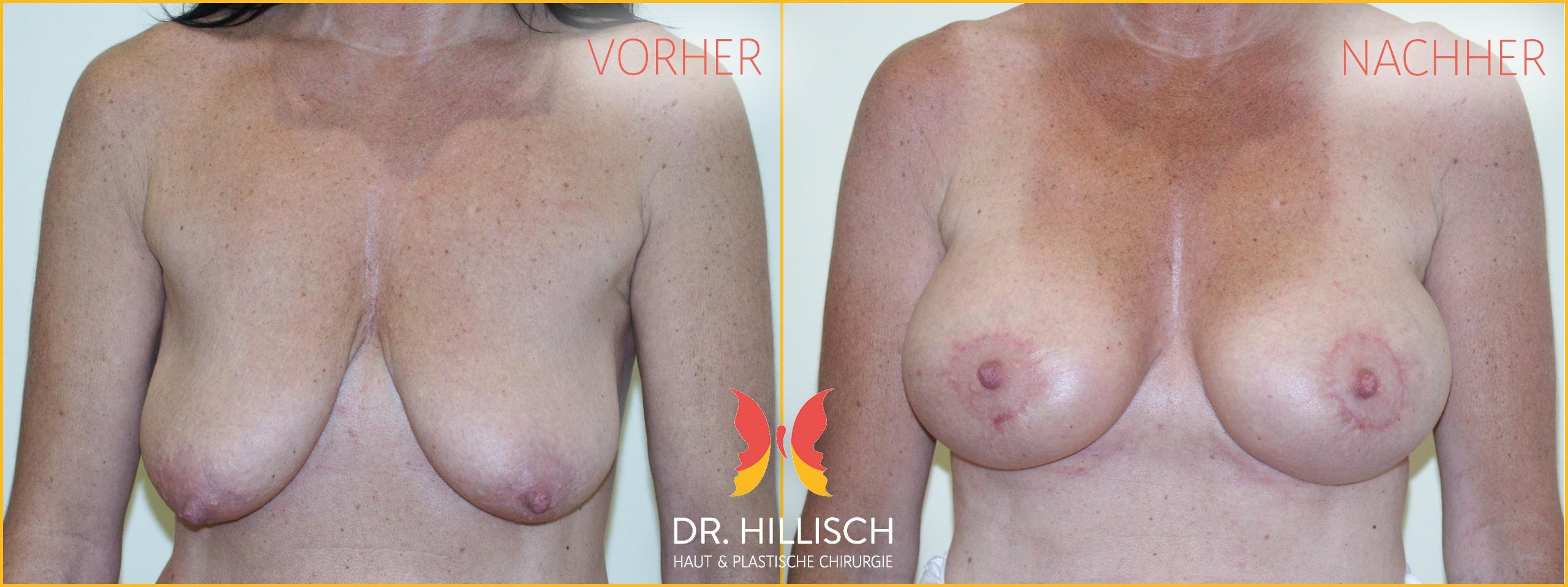 Bruststraffung Vorher Nachher Patient 026