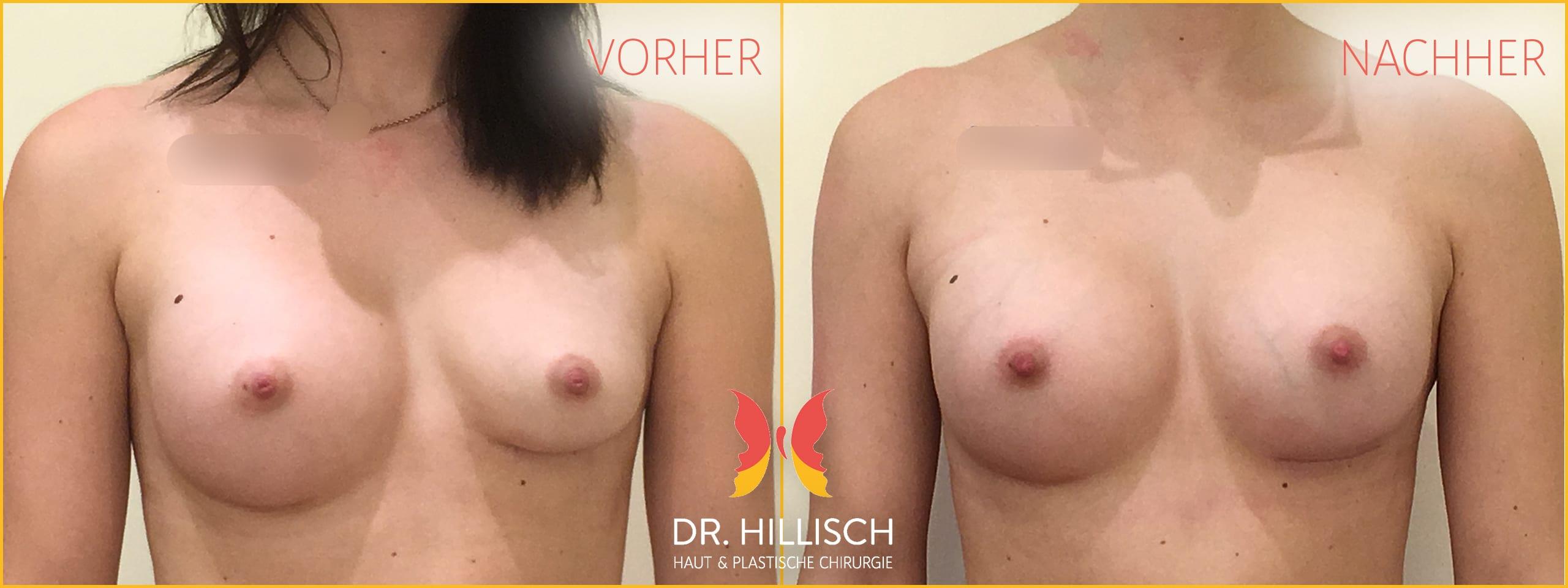 Brustvergrößerung Vorher Nachher Patient 027