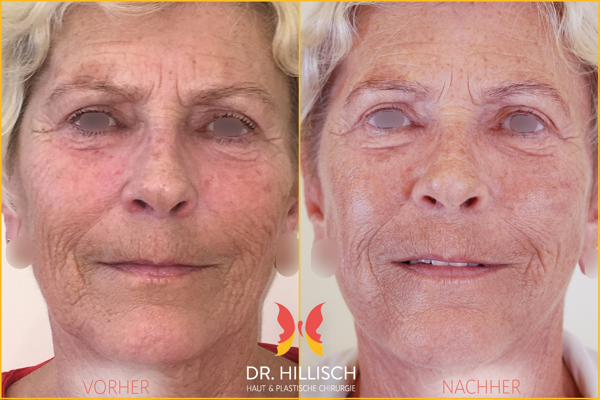 Facelifting Vorher Nachher Patient 028