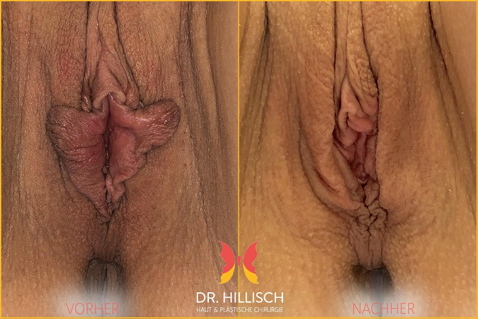 Schamlippenkorrektur Vorher Nachher Patient 033