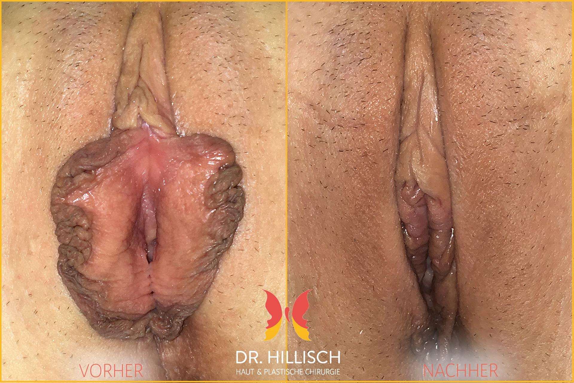 Schamlippenkorrektur Vorher Nachher Patient 034