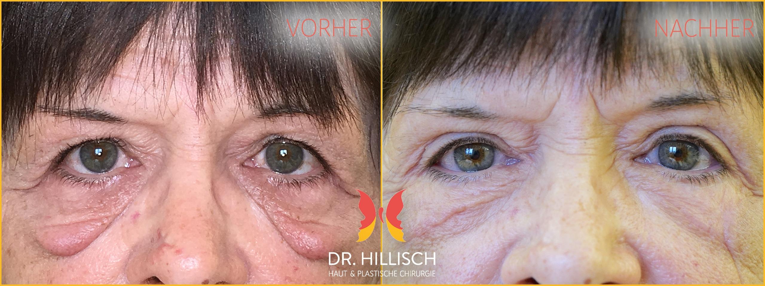Augenlidstraffung Vorher Nachher Patient 036