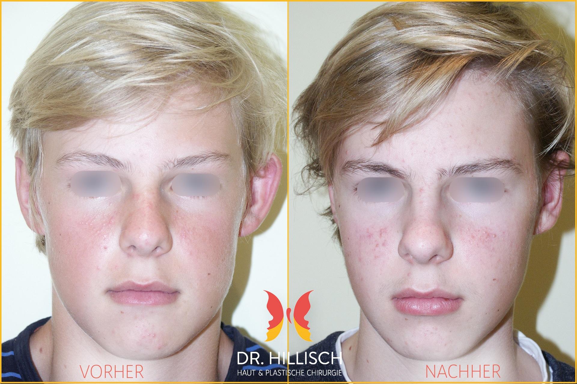 Ohrenkorrektur Vorher Nachher Patient 038
