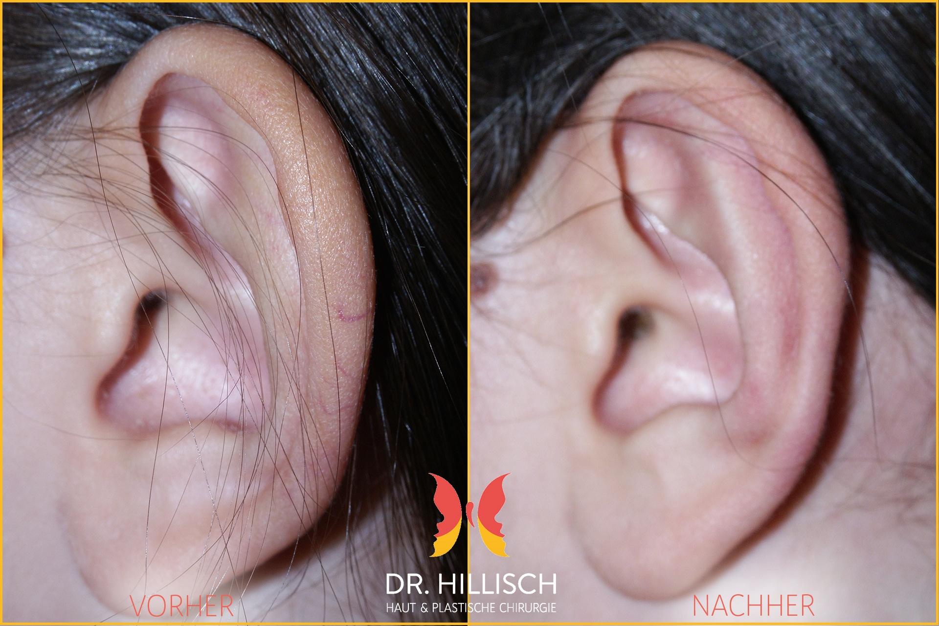 Ohrenkorrektur Vorher Nachher Patient 039