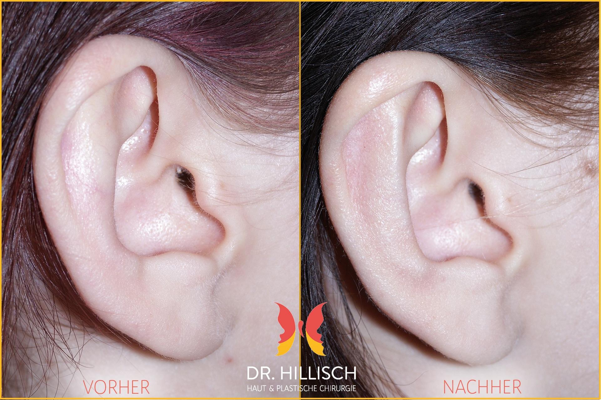 Ohrenkorrektur Vorher Nachher Patient 040