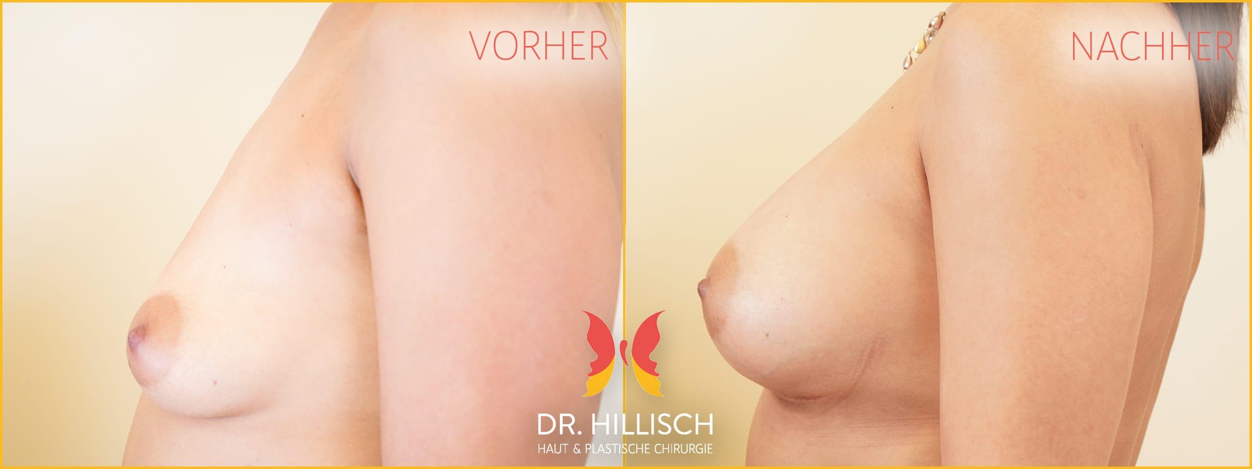 Brustvergrößerung Vorher Nachher Patient 046