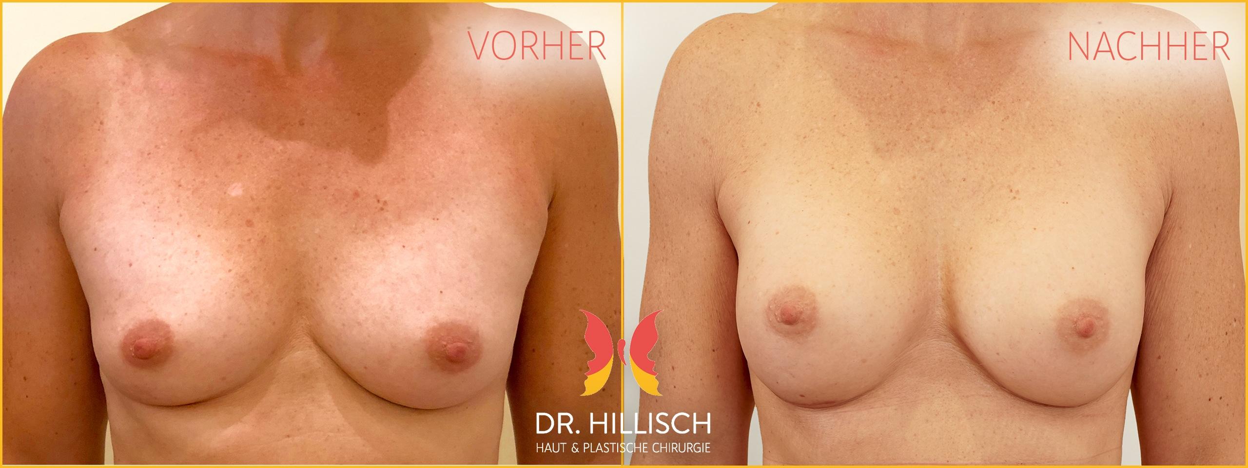 Brustvergrößerung Vorher Nachher Patient 048