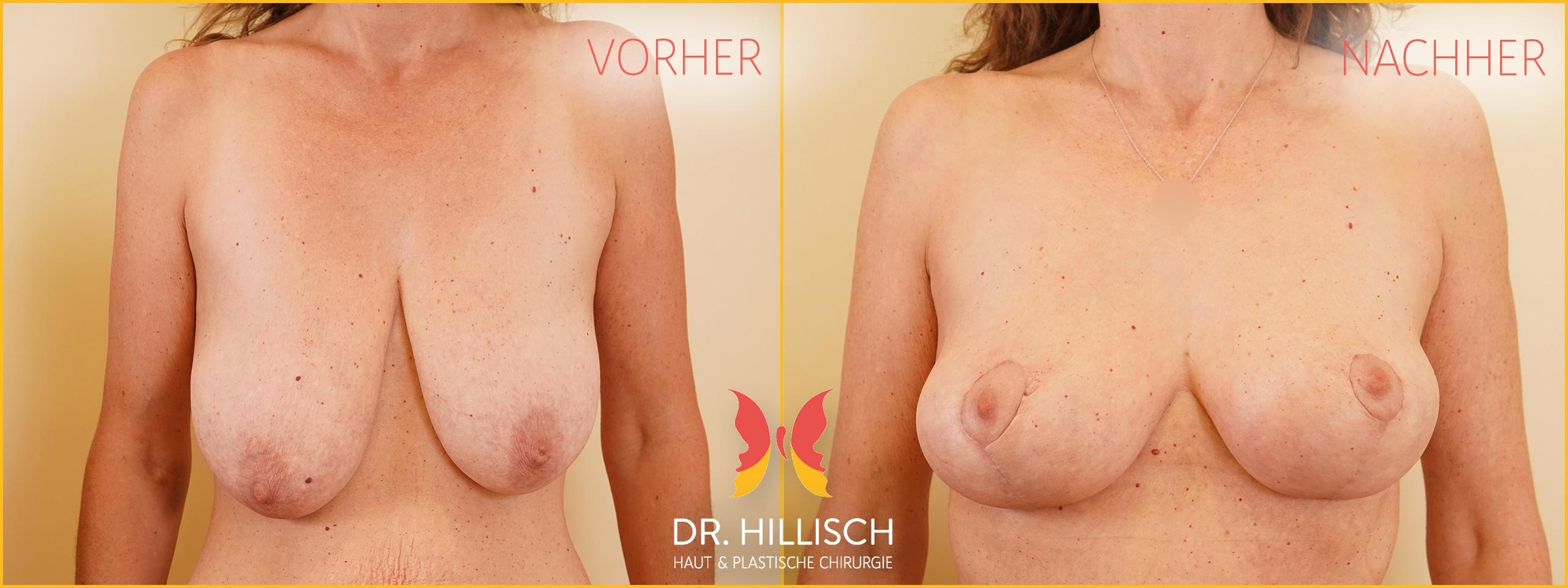 Bruststraffung Vorher Nachher Patient 049