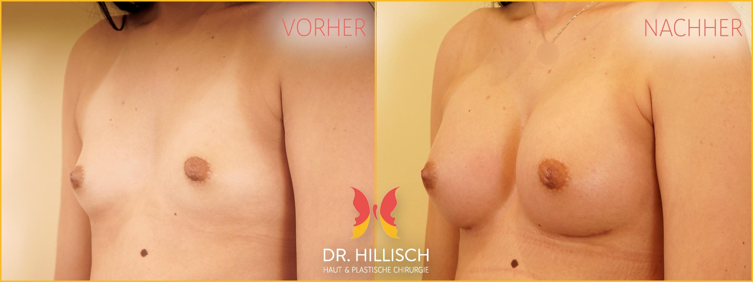 Brustvergrößerung Vorher Nachher Patient 052