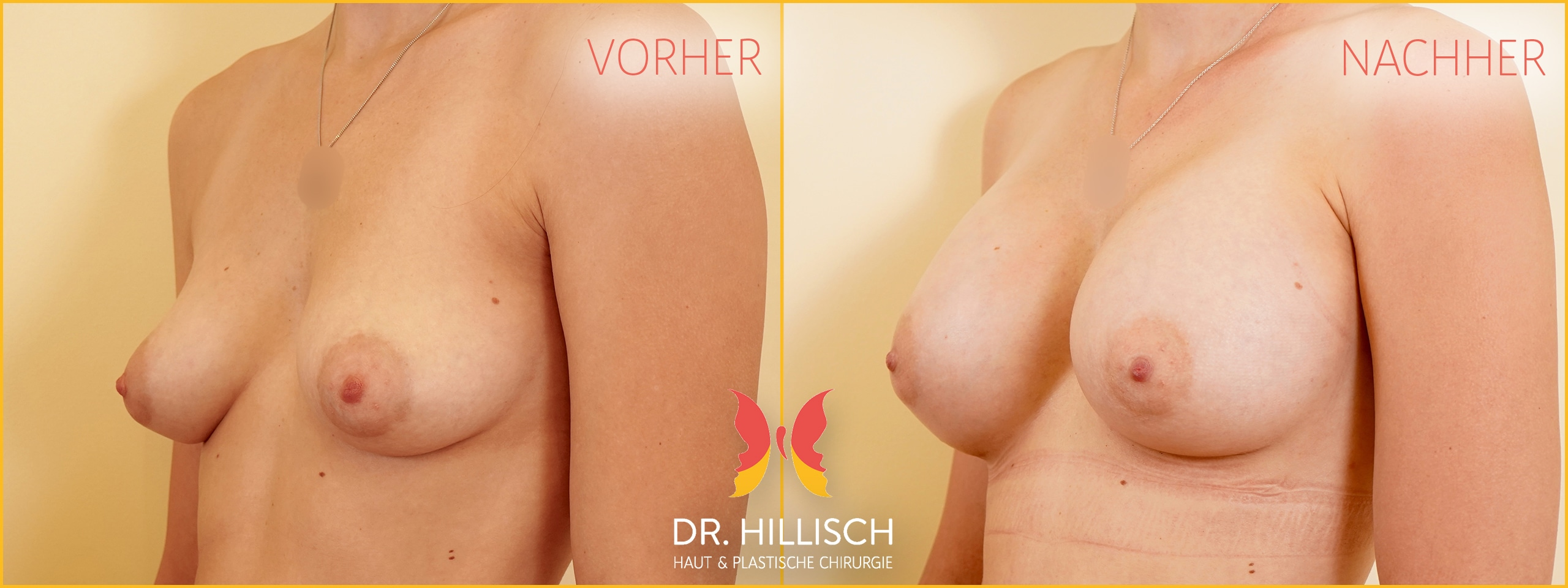 Brustvergrößerung Vorher Nachher Patient 053