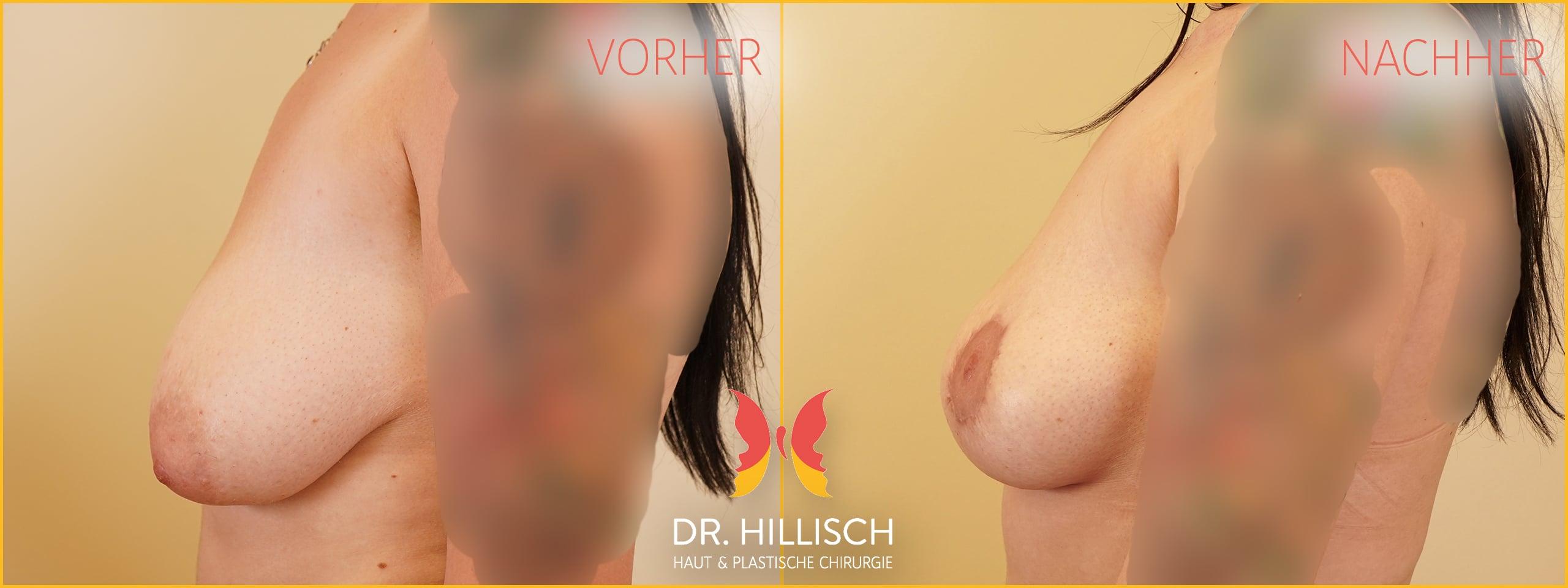 Bruststraffung Vorher Nachher Patient 054