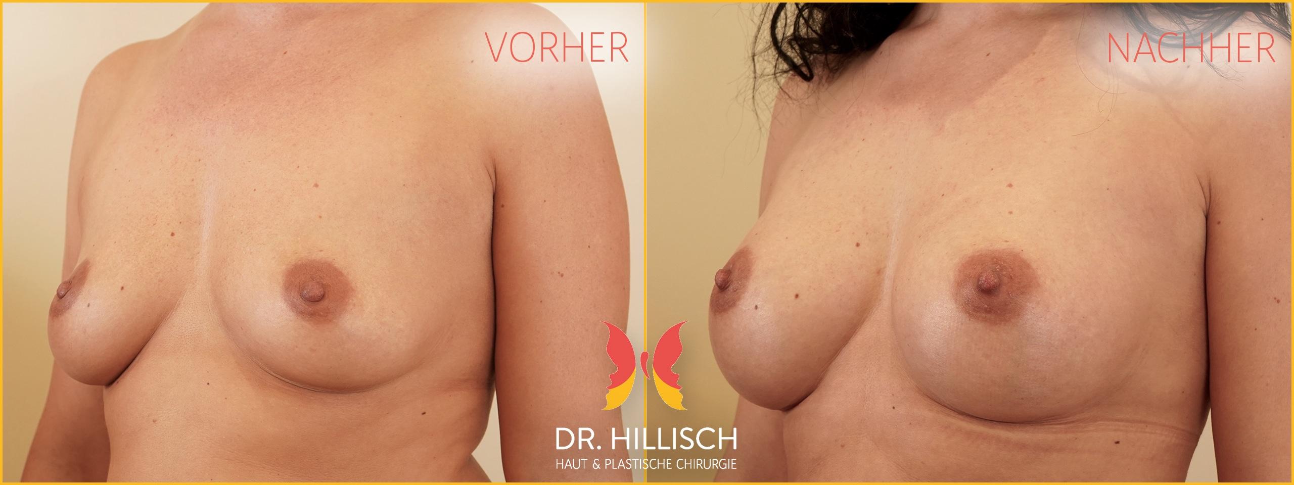 Brustvergrößerung Vorher Nachher Patient 055