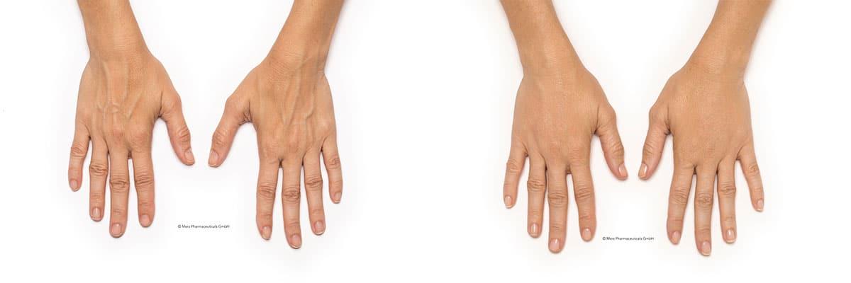 Botox Behandlung Hand Vorher Nachher